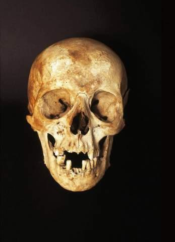 Telner (F1 Online) - Menschlicher Schädel Kopf, Knochen
